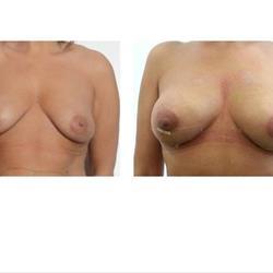 Lipofilling del seno ovvero aumento con il proprio grasso