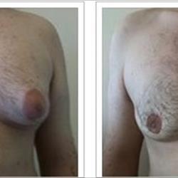 Uomini con il seno