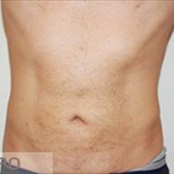 La lipolaser: una tecnica vincente per il rimodellamento del profilo corporeo