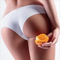 Cellulite: prevenzione, diagnosi e terapia