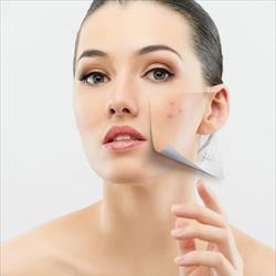 Electroporo Cosmesis: una nuova tecnica per la bellezza della pelle