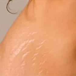 Rughe, cicatrici da acne, da smagliature o di altra natura?  Laser Resurfacing (Ablativo) con CO2