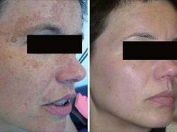 Eliminazione di asterischi vascolari su una faccia al bambino